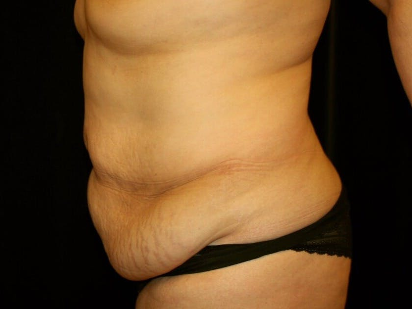 Tummy Tuck Gallery - Patient 39245214 - Image 9