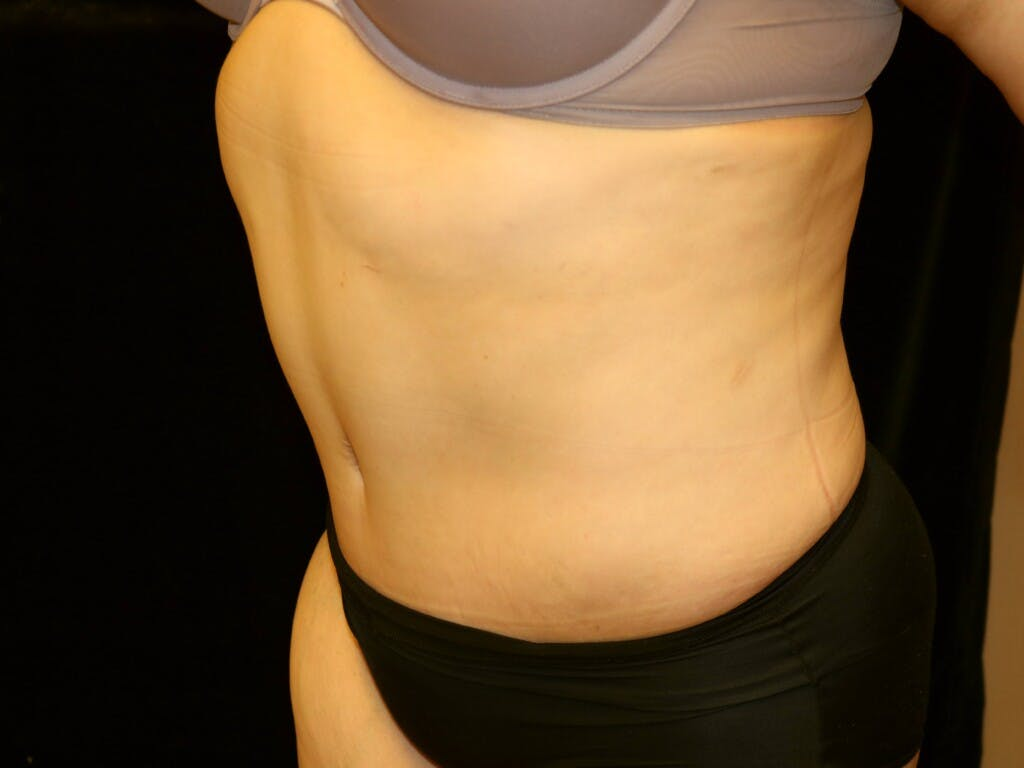 Tummy Tuck Gallery - Patient 39245214 - Image 10