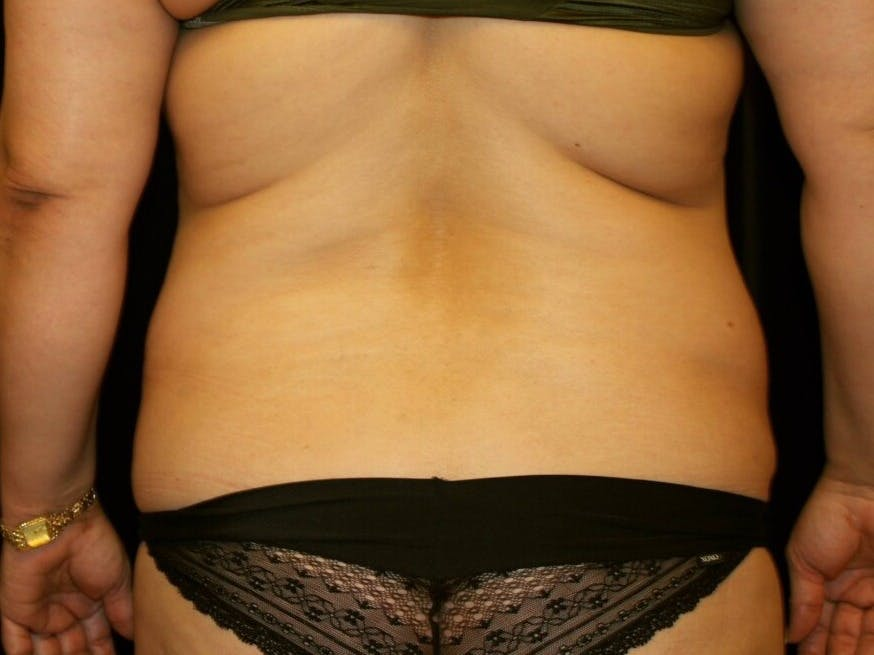 Tummy Tuck Gallery - Patient 39245214 - Image 11
