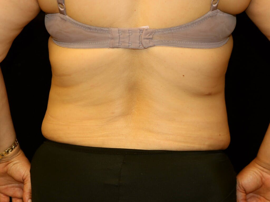 Tummy Tuck Gallery - Patient 39245214 - Image 12