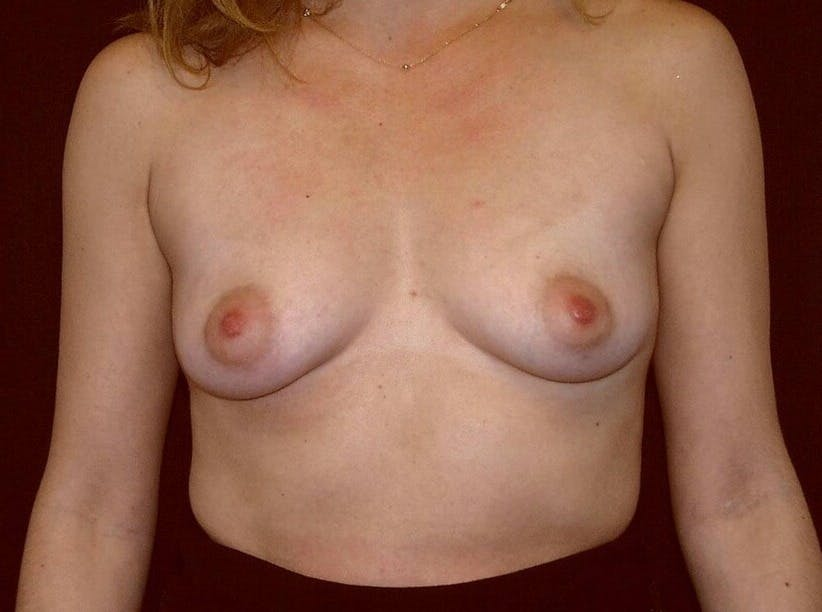 Breast Augmentation Gallery - Patient 39245232 - Image 1