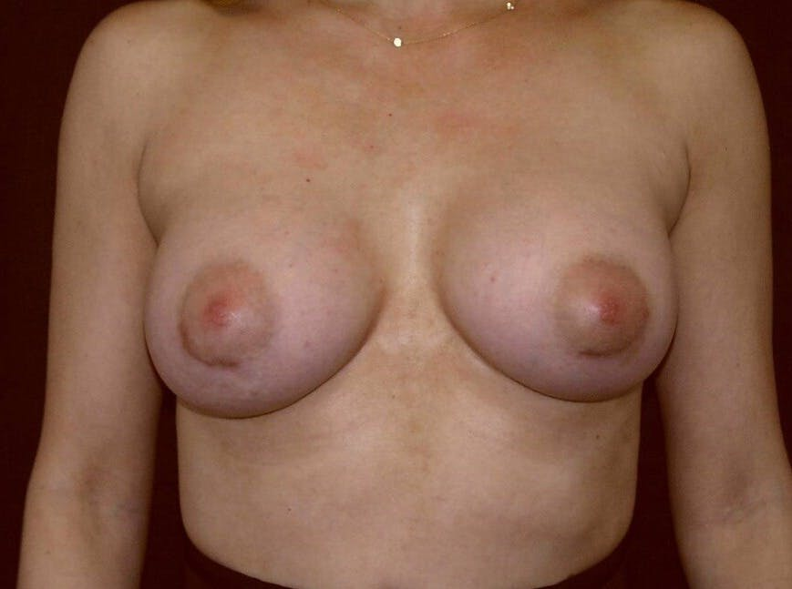 Breast Augmentation Gallery - Patient 39245232 - Image 2