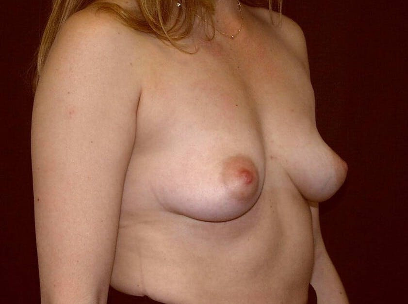 Breast Augmentation Gallery - Patient 39245232 - Image 3