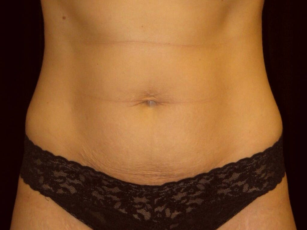 Tummy Tuck Gallery - Patient 39245233 - Image 1