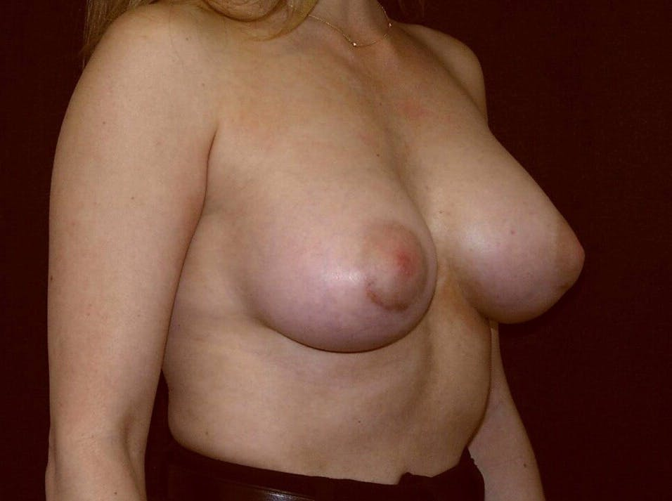 Breast Augmentation Gallery - Patient 39245232 - Image 4