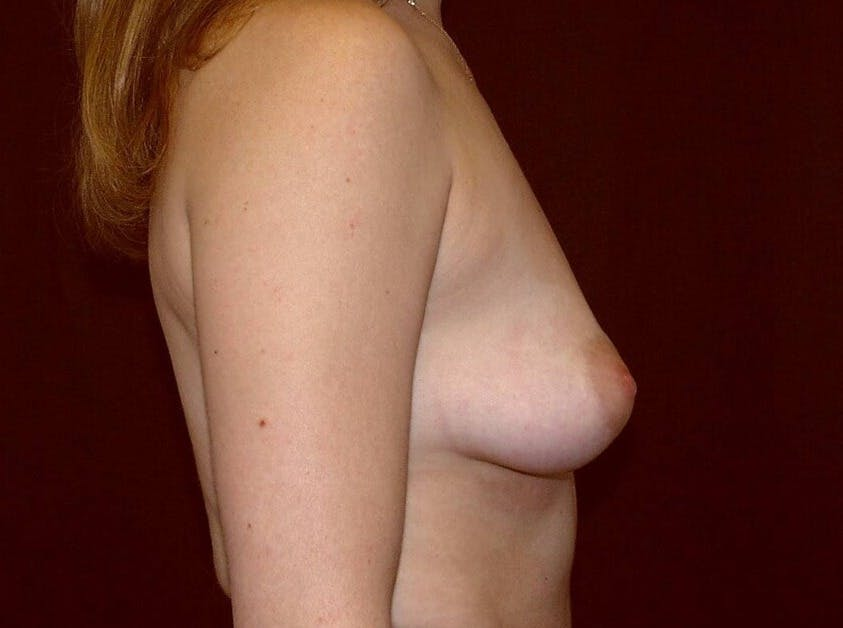 Breast Augmentation Gallery - Patient 39245232 - Image 5