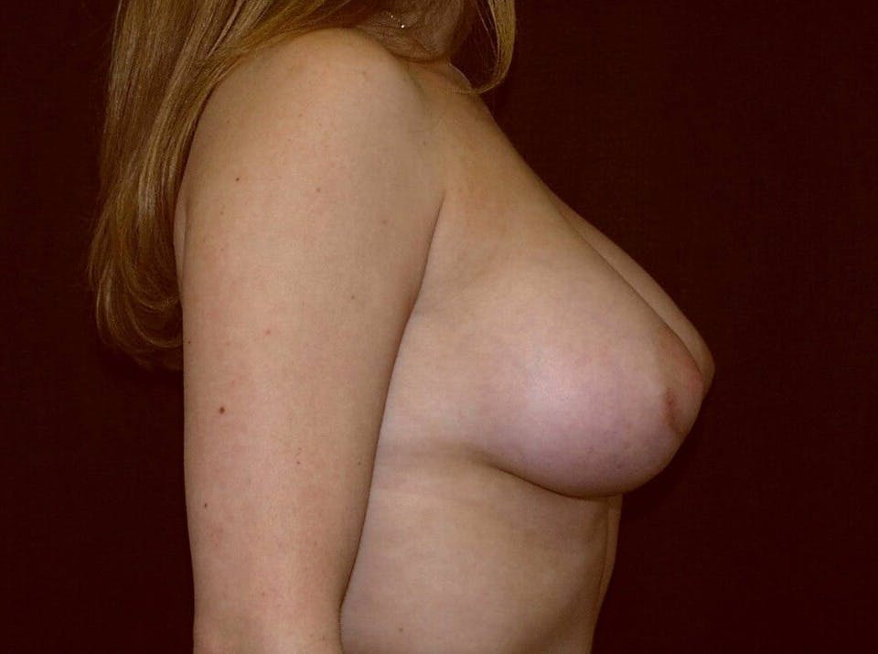 Breast Augmentation Gallery - Patient 39245232 - Image 6