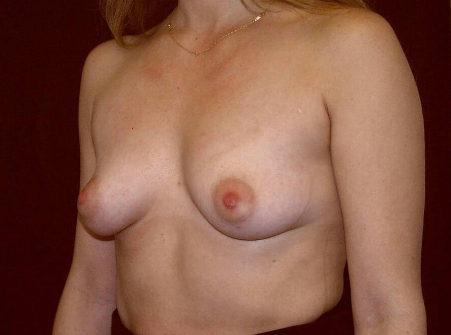 Breast Augmentation Gallery - Patient 39245232 - Image 7
