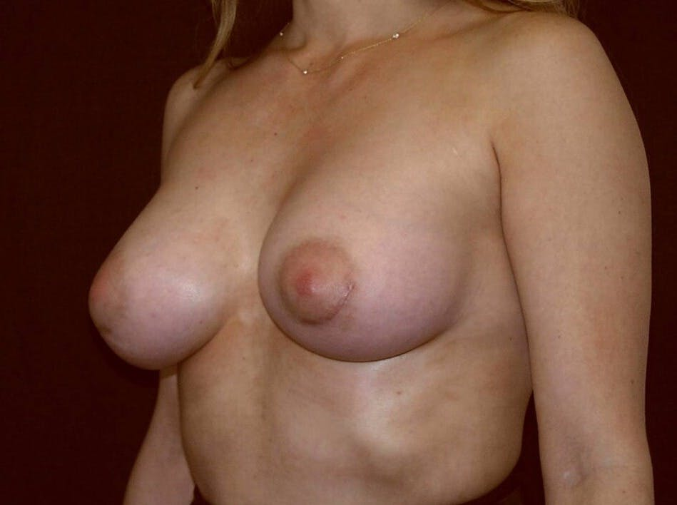 Breast Augmentation Gallery - Patient 39245232 - Image 8