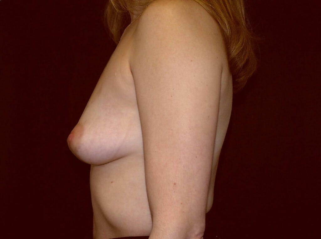 Breast Augmentation Gallery - Patient 39245232 - Image 9