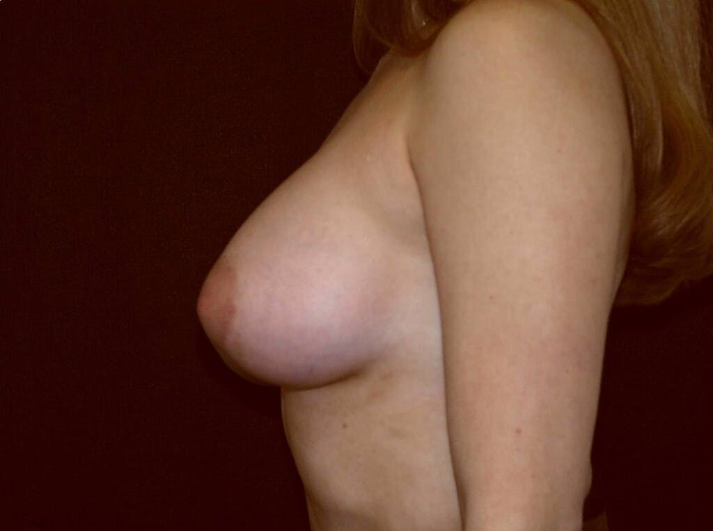 Breast Augmentation Gallery - Patient 39245232 - Image 10