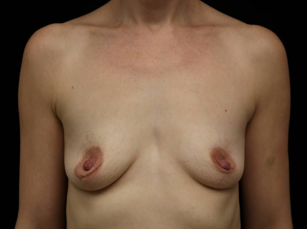Breast Augmentation Gallery - Patient 39245241 - Image 1