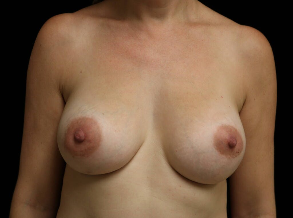 Breast Augmentation Gallery - Patient 39245241 - Image 2