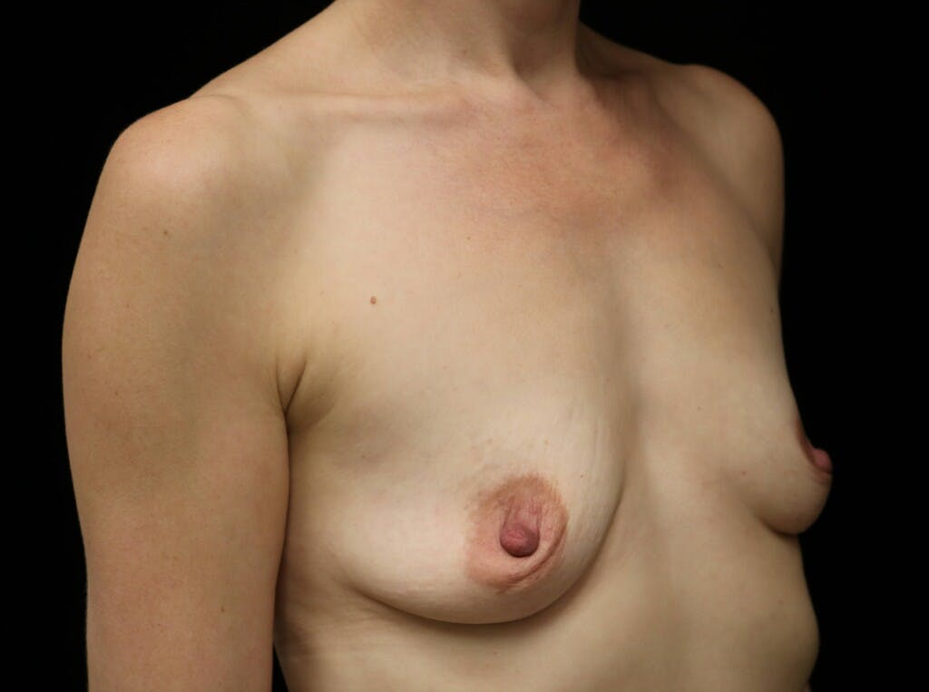 Breast Augmentation Gallery - Patient 39245241 - Image 3