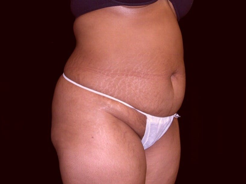 Tummy Tuck Gallery - Patient 39245240 - Image 3
