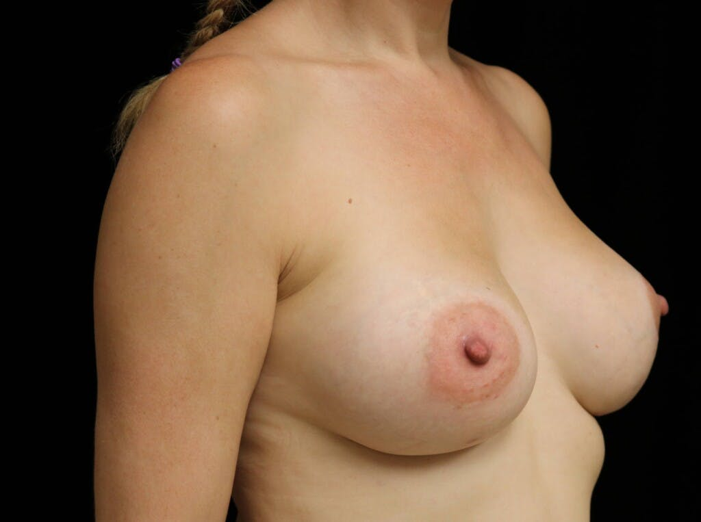 Breast Augmentation Gallery - Patient 39245241 - Image 4