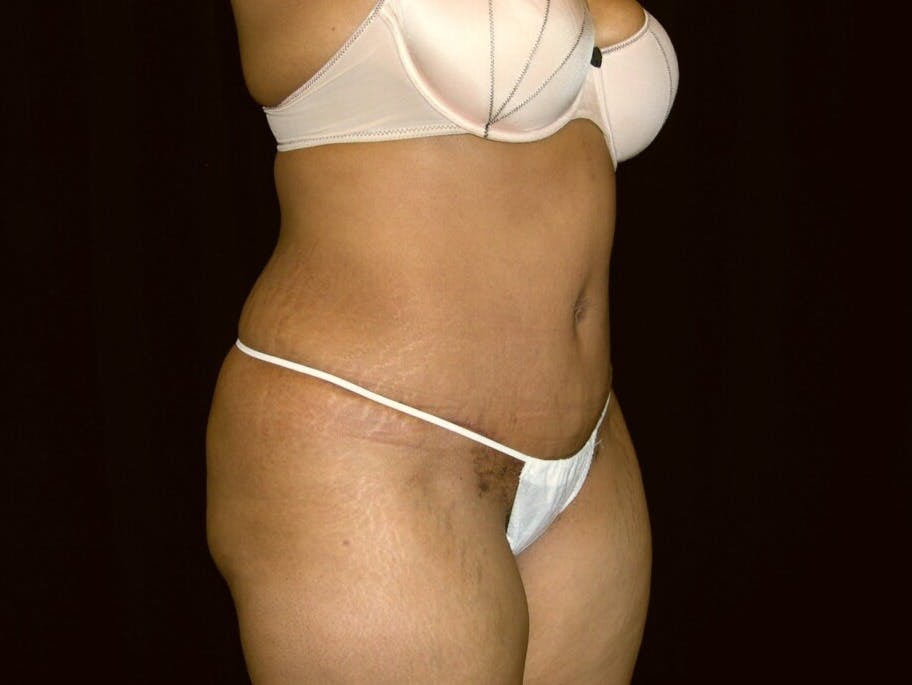 Tummy Tuck Gallery - Patient 39245240 - Image 4