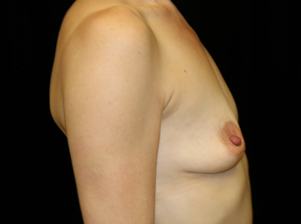 Breast Augmentation Gallery - Patient 39245241 - Image 5