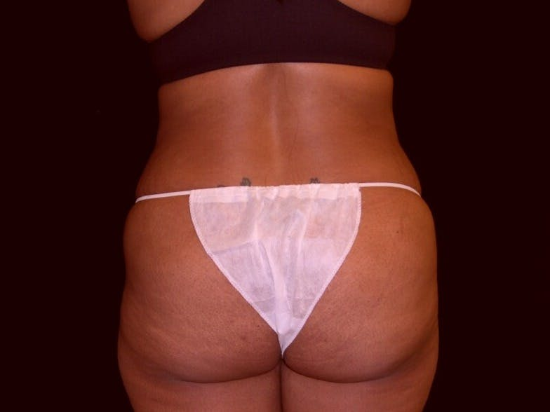 Tummy Tuck Gallery - Patient 39245240 - Image 5
