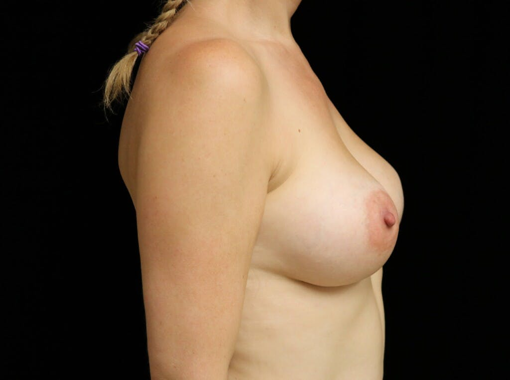 Breast Augmentation Gallery - Patient 39245241 - Image 6