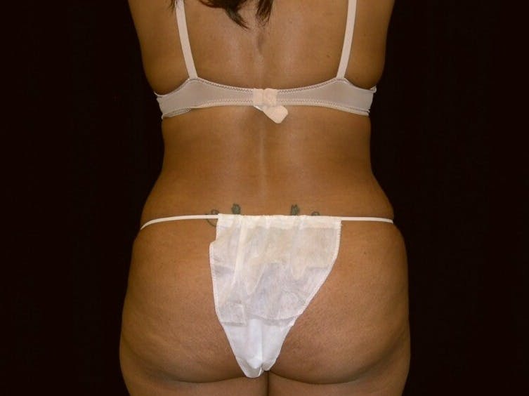 Tummy Tuck Gallery - Patient 39245240 - Image 6