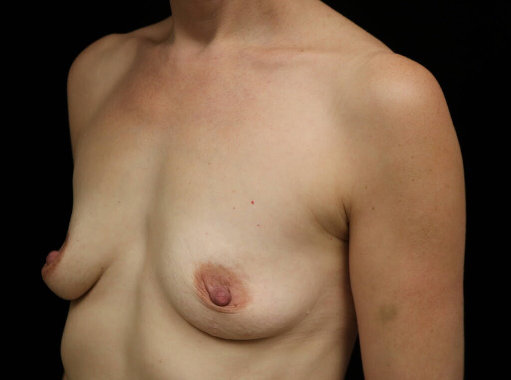 Breast Augmentation Gallery - Patient 39245241 - Image 7