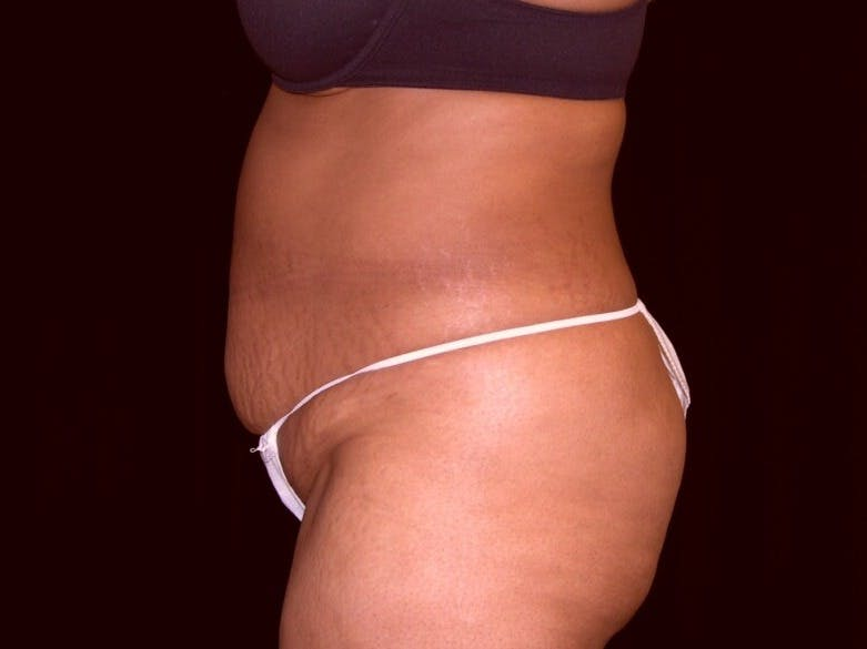 Tummy Tuck Gallery - Patient 39245240 - Image 7