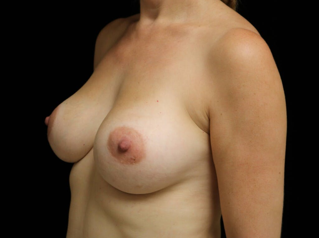Breast Augmentation Gallery - Patient 39245241 - Image 8