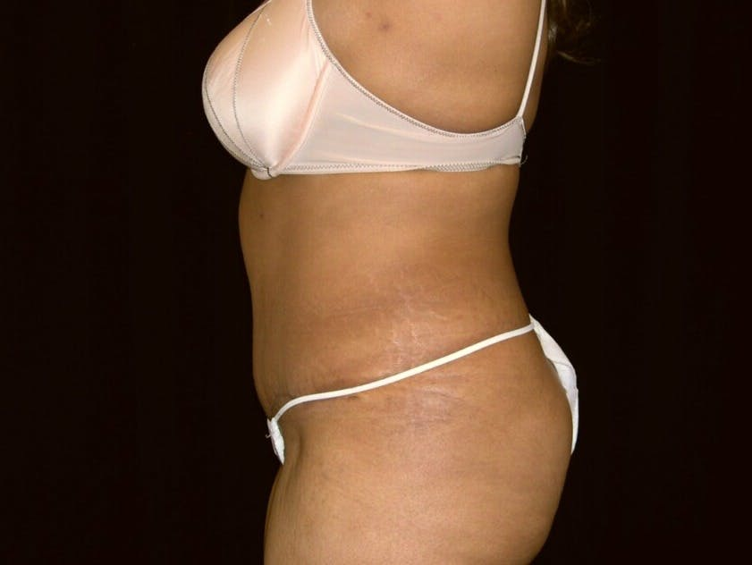 Tummy Tuck Gallery - Patient 39245240 - Image 8