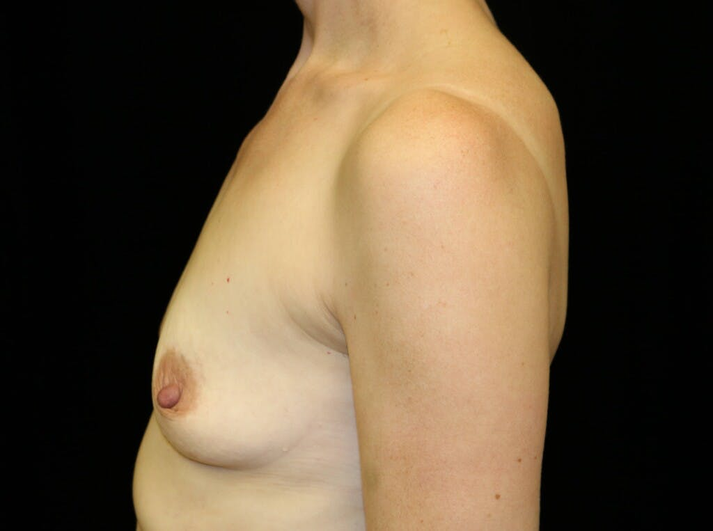 Breast Augmentation Gallery - Patient 39245241 - Image 9