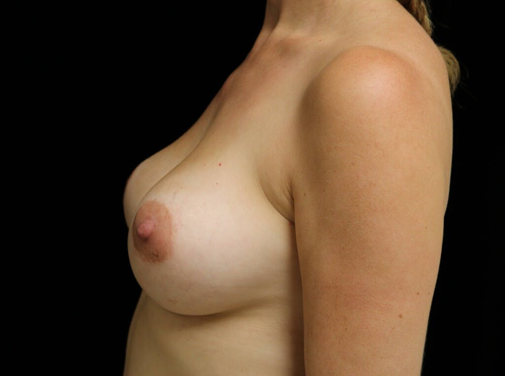 Breast Augmentation Gallery - Patient 39245241 - Image 10