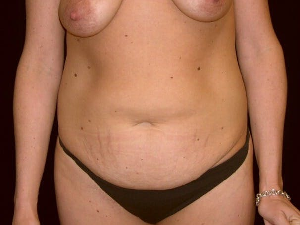 Tummy Tuck Gallery - Patient 39245376 - Image 1