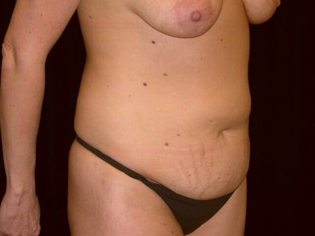 Tummy Tuck Gallery - Patient 39245376 - Image 3