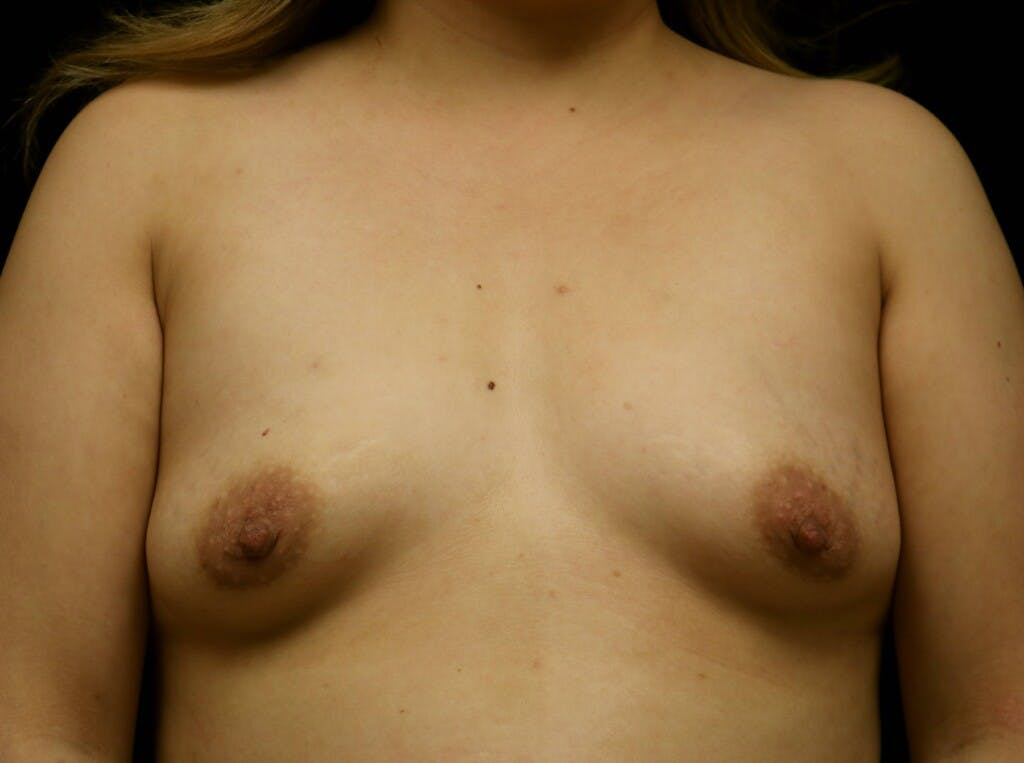 Breast Augmentation Gallery - Patient 39245377 - Image 1