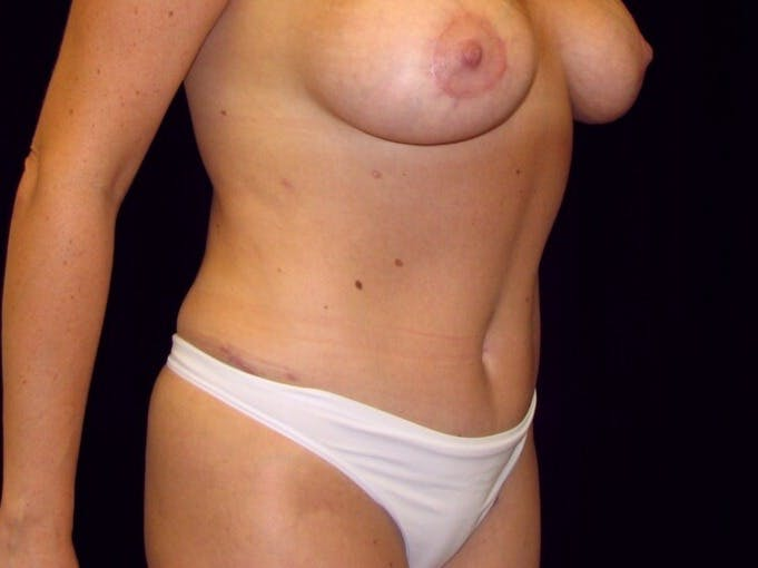Tummy Tuck Gallery - Patient 39245376 - Image 4
