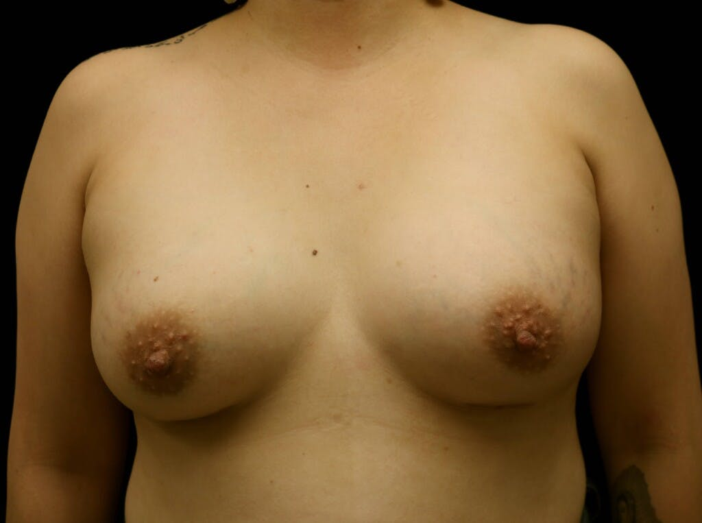 Breast Augmentation Gallery - Patient 39245377 - Image 2
