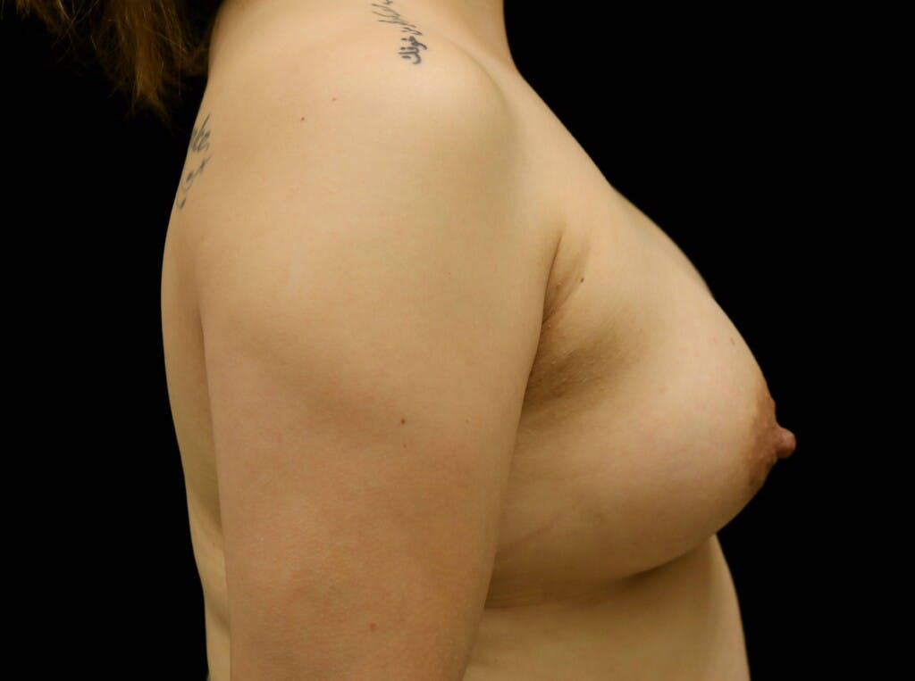 Breast Augmentation Gallery - Patient 39245377 - Image 4