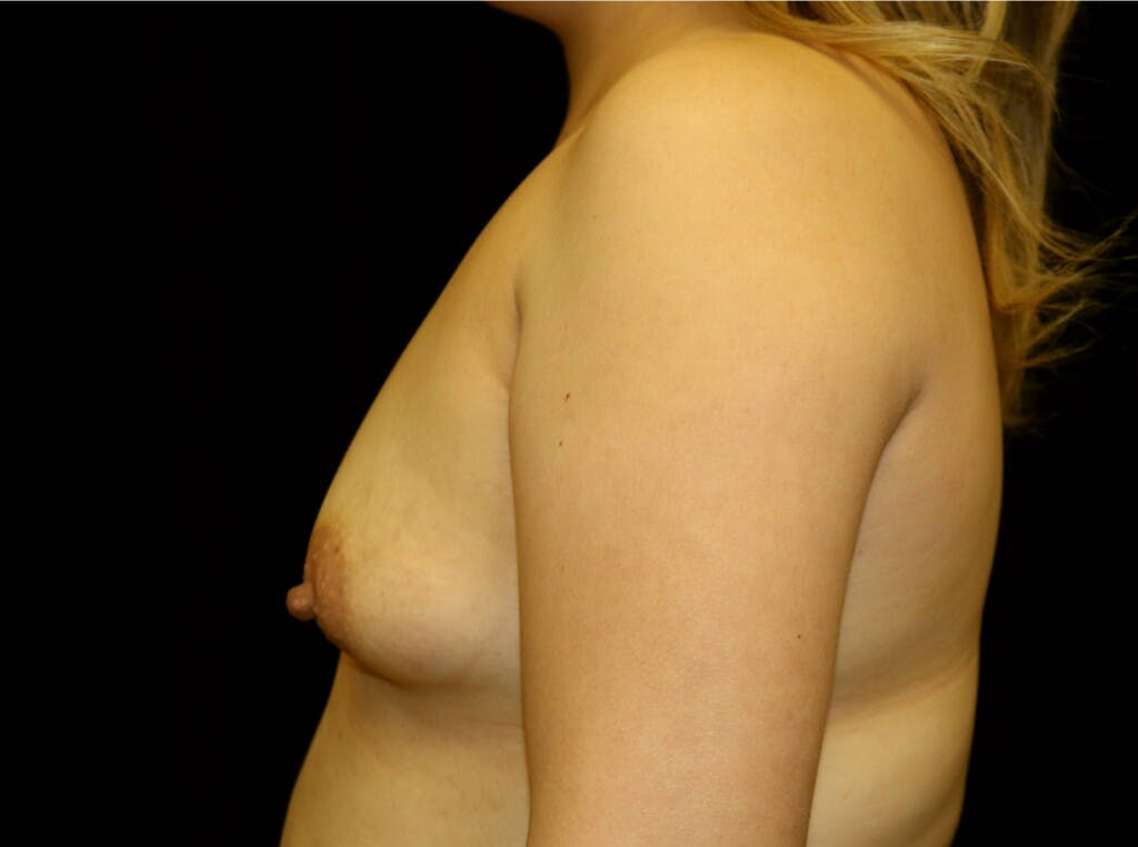 Breast Augmentation Gallery - Patient 39245377 - Image 5