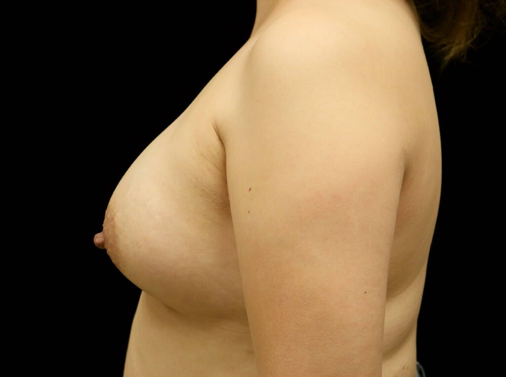 Breast Augmentation Gallery - Patient 39245377 - Image 6