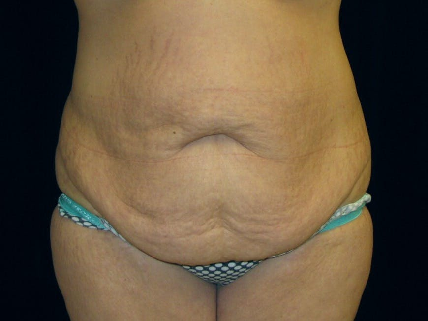 Tummy Tuck Gallery - Patient 39245378 - Image 1