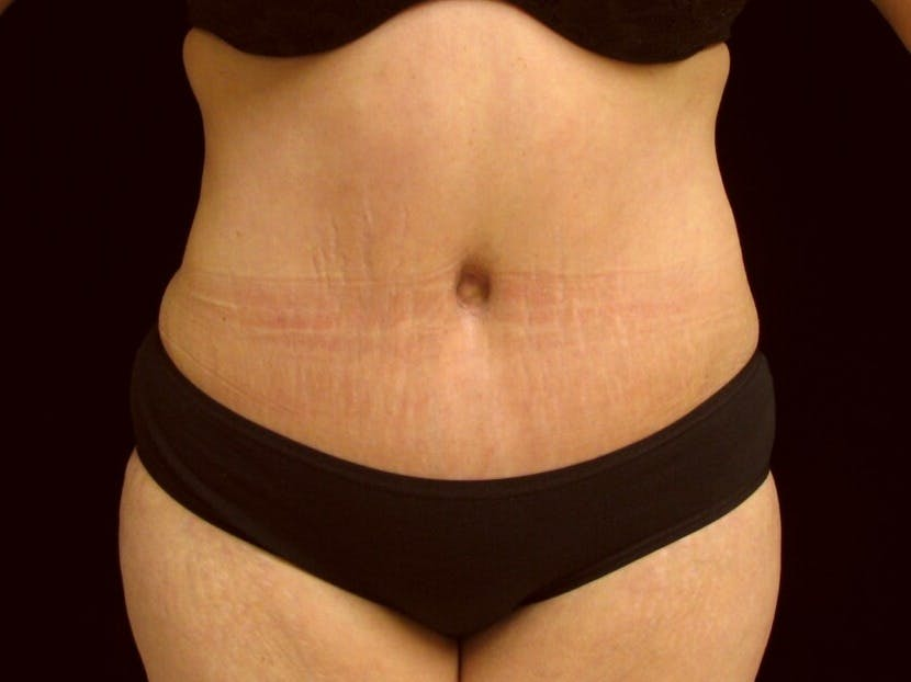 Tummy Tuck Gallery - Patient 39245378 - Image 2