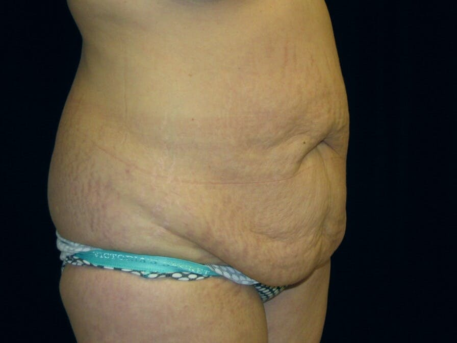 Tummy Tuck Gallery - Patient 39245378 - Image 3