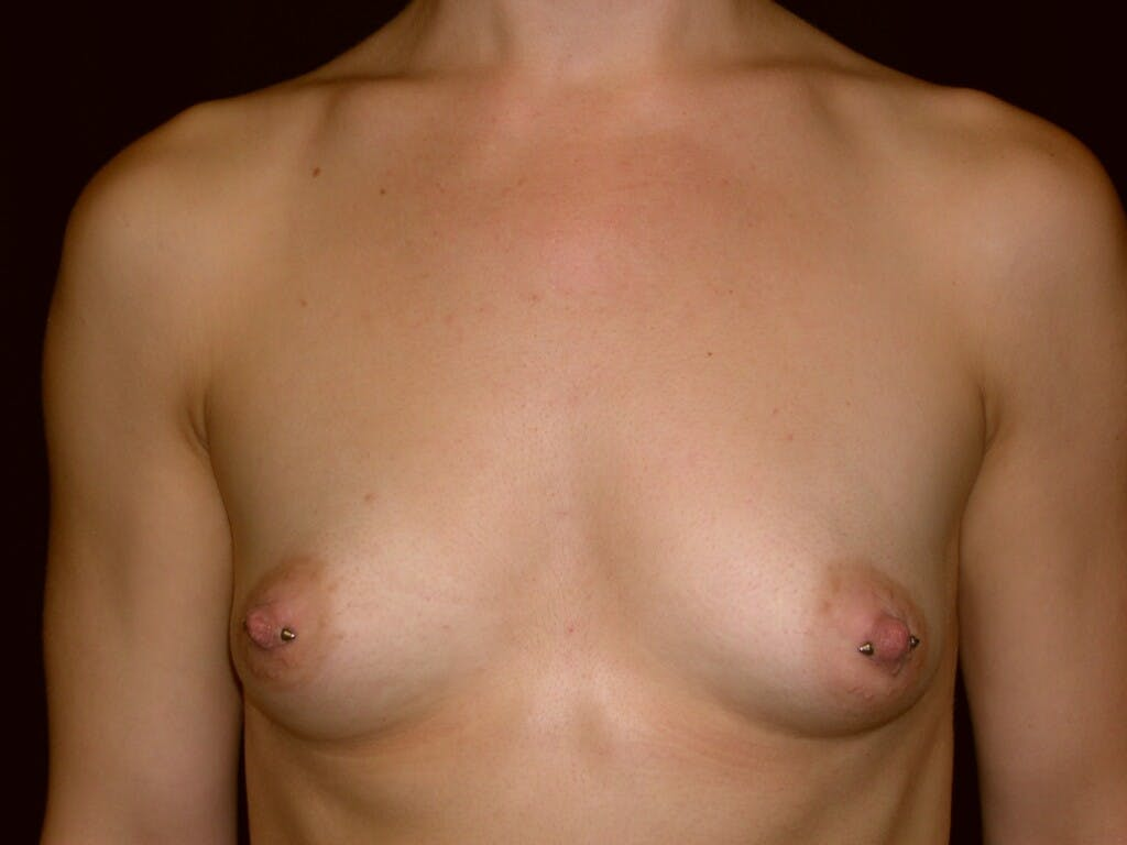 Breast Augmentation Gallery - Patient 39245379 - Image 1