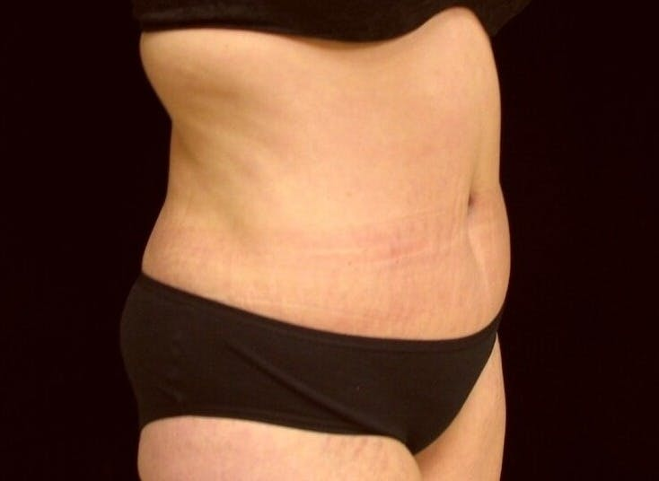 Tummy Tuck Gallery - Patient 39245378 - Image 4