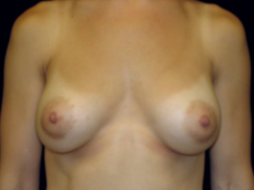 Breast Augmentation Gallery - Patient 39245379 - Image 2
