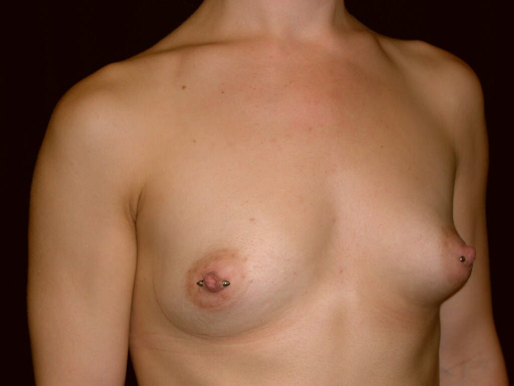 Breast Augmentation Gallery - Patient 39245379 - Image 3