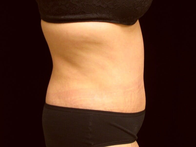 Tummy Tuck Gallery - Patient 39245378 - Image 6