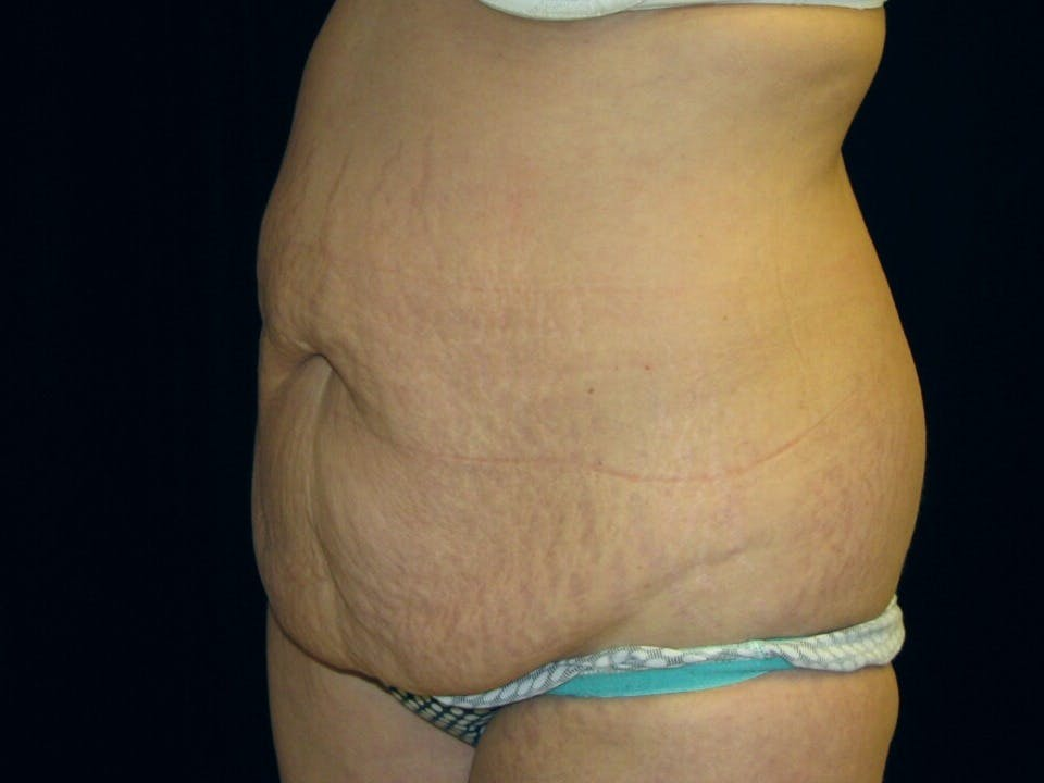 Tummy Tuck Gallery - Patient 39245378 - Image 7