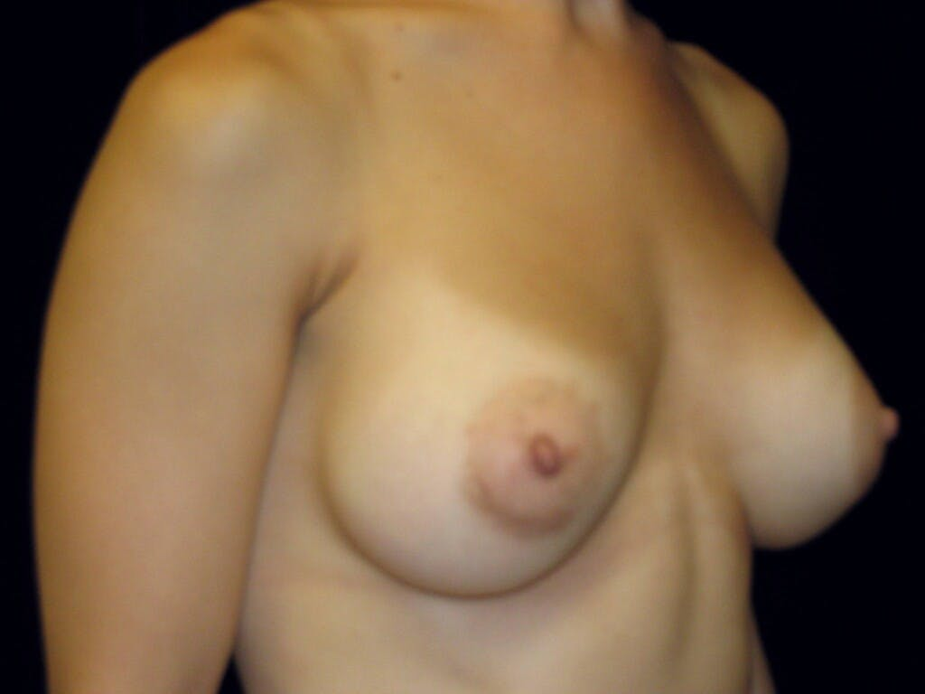 Breast Augmentation Gallery - Patient 39245379 - Image 4