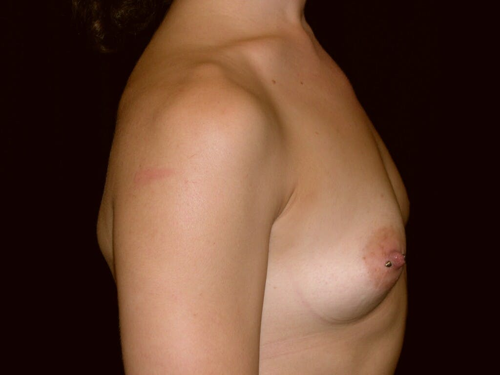 Breast Augmentation Gallery - Patient 39245379 - Image 5
